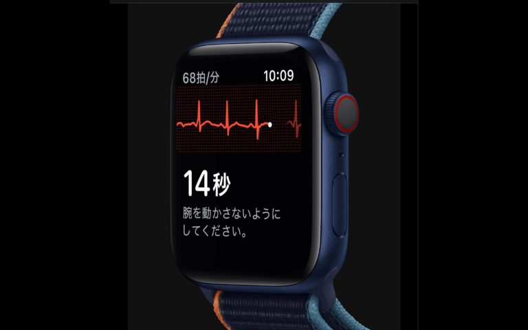 AppleWatch_心電図